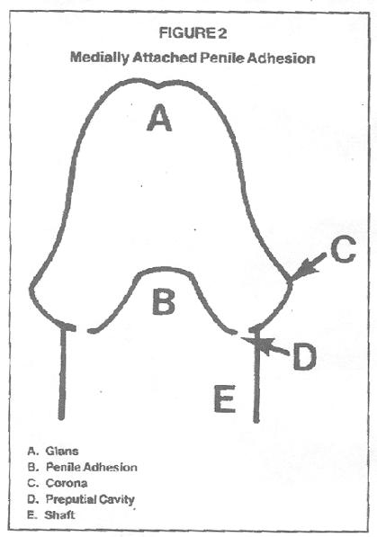 penisdiogram